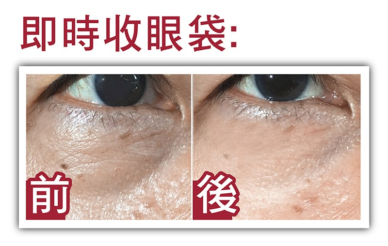 eye bag before and after