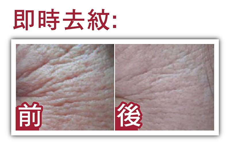 wrinkle before after